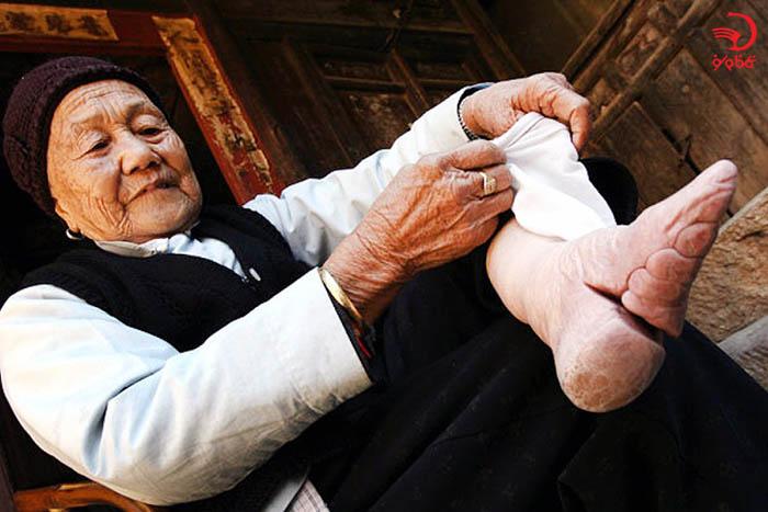 بستن پا برای جلوگیری از رشد پا در چین