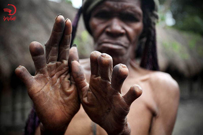 قطع کردن نوک انگشت سوگواری در اندونزی